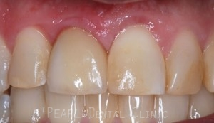 Crown implant_gum contouring