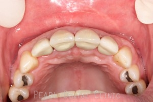 Before After Bone Augmentation - Cemented implant crowns