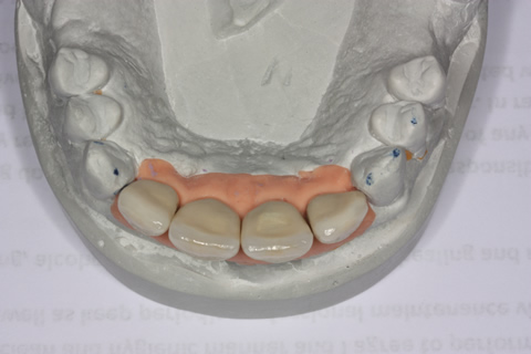 Before After Bone Augmentation - Crowns positioned on the model