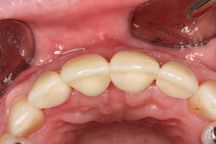 Before After Bone Augmentation - Gum in shape after two months