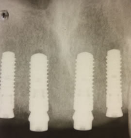 Before After Bone Augmentation - Strauman fast healing implant placed