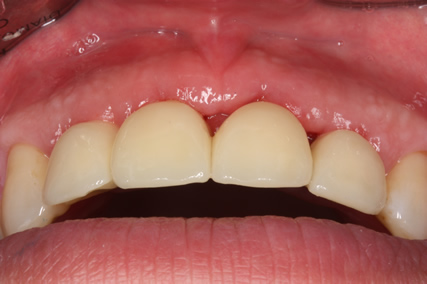 Before After Bone Augmentation - Temporary cowns cemented