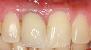 Before After Missing Front Tooth - Temporary crown placed