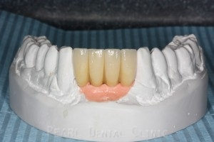Missing Lower Front Teeth - Lower arch planning model for four teeth