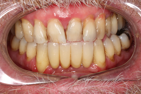 Missing Lower Front Teeth - Two strauman dental implants in the jaw