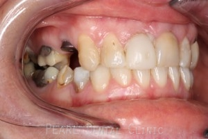 Before After Missing Premolars - Implants left to heal for eight weeks