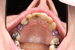 Before After Missing Premolars - Placing two straumann implants