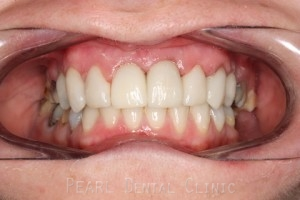 Before After Missing Premolars - Re-rooting incisor_placing eman veneers_crowns
