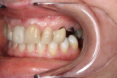 Before After Missing Premolars - Shaping_shading upper front teeth
