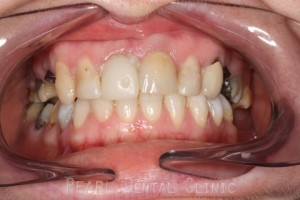 Before After Missing Premolars - Two missing upper premolars