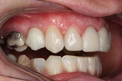 Before After Missing Premolars - Upper jaw no gaps