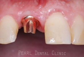 Gold implant abutment