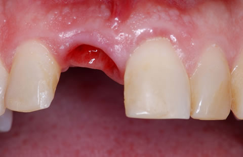 Abutment Tooth implant