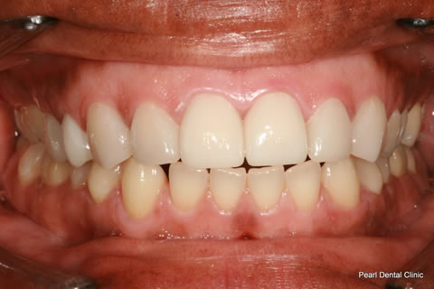 Improved Smile After - Final full arch Emax crown_veneers teeth