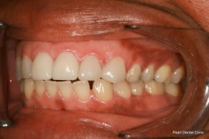 Improved Smile After - Left full arch Emax crown_veneers teeth