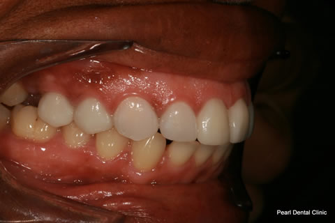 Improved Smile After - Right full arch Emax crown_veneers teeth