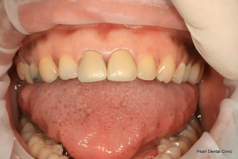 Improved Smile Before After - Full arch teeth