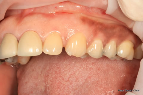 Improved Smile Before - Upper teeth