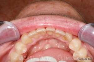 Invisalign After - Bottom arch teeth