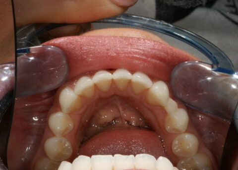 Invisalign After - Bottom arches teeth