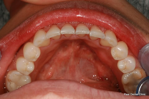 Invisalign After - Full bottom arch teeth