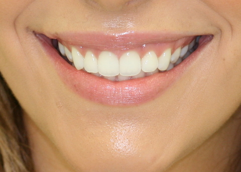 Invisalign After - Full smile