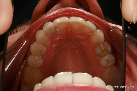Invisalign After - Full top arch teeth