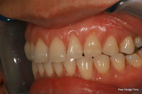 Invisalign After - Full top_bottom arches left side teeth