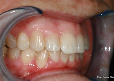 Invisalign After - Full top_bottom arches right side teeth