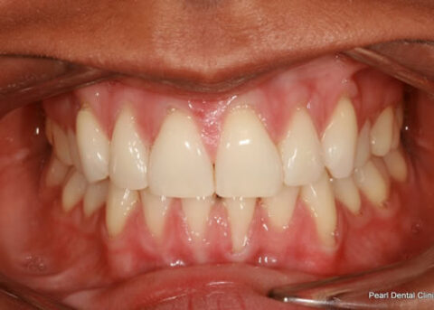 Invisalign After - Full top_bottom arches teeth