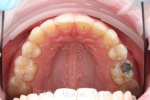 Full upper arch teeth