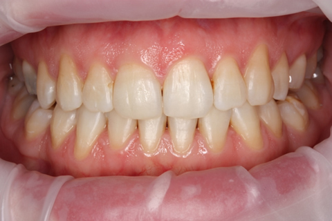 Invisalign After - Full upper_lower arch teeth