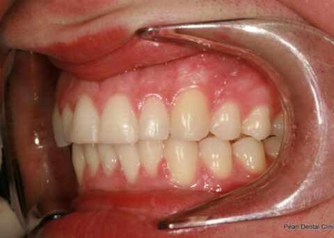 Invisalign After - Full upper_lower arches left side teeth