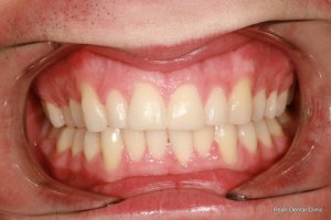 Invisalign After - teeth whitening_teeth bleaching after