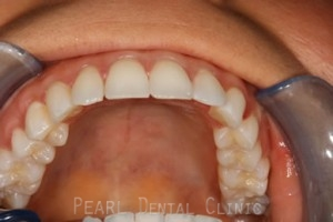 Invisalign After - Top arch teeth