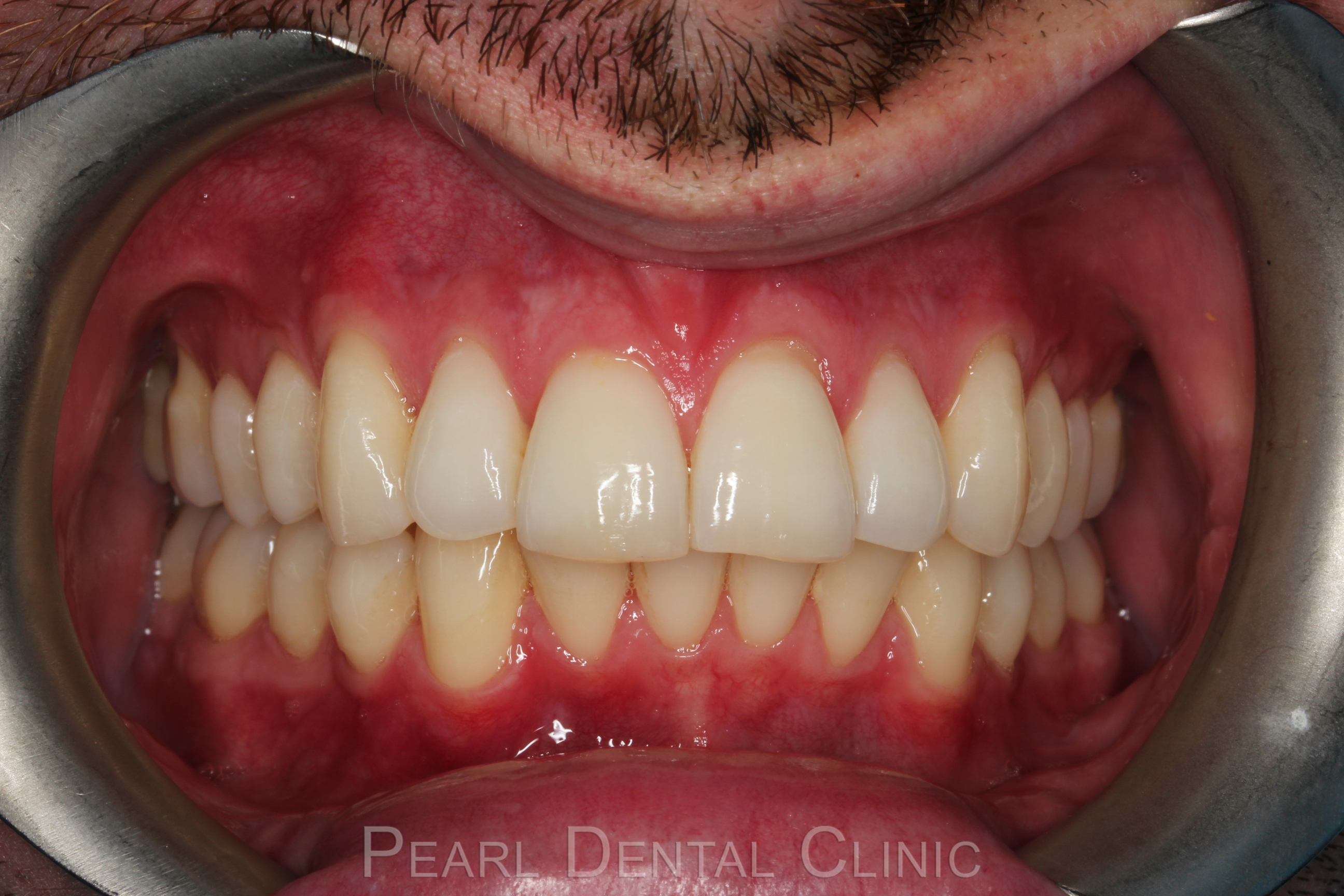Invisalign Anterior_14 after