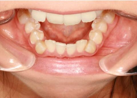 Invisalign Before - Bottom arch teeth
