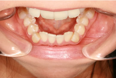 Invisalign Before - Bottom arch teeth