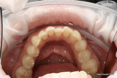 Invisalign Before - Full bottom arch teeth