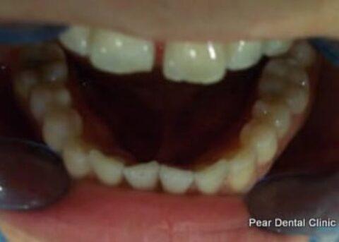Invisalign Before - Full bottom arch teeth