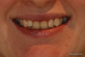 Invisalign Before - Full smile