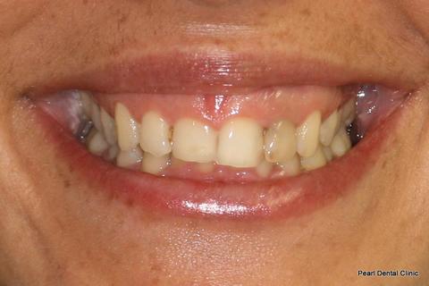 Invisalign Before - Full smile