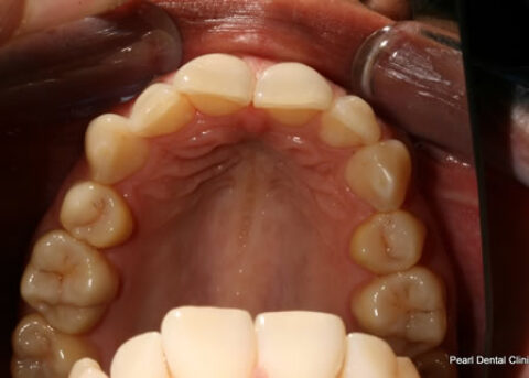 Invisalign Before - Full top arch teeth