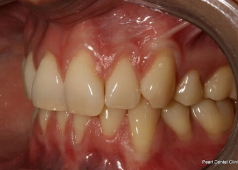 Invisalign Before - Full top_bottom arches left side teeth
