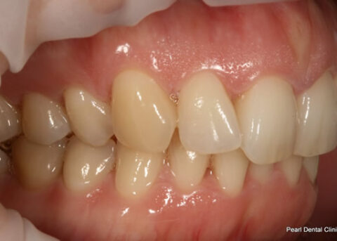 Invisalign Before - Full top_bottom arches right side teeth