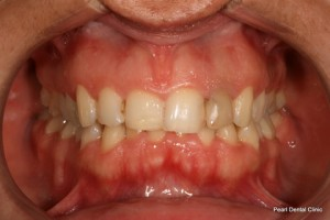 Invisalign Before - Full top_bottom arches teeth
