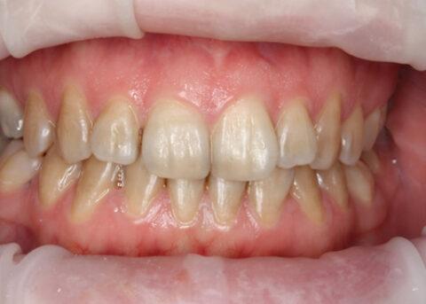 Invisalign Before - Full upper_lower arch teeth