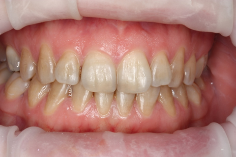 Invisalign Before - Full upper_lower arch teeth