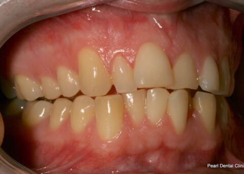Invisalign Before - Full upper_lower arches right side teeth