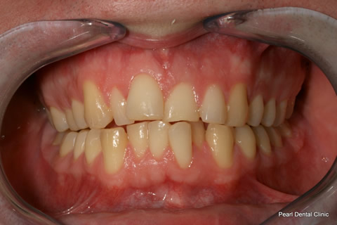 Invisalign Before - Full upper_lower arches teeth